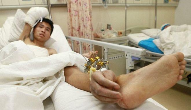 Συγκόλλησαν το χέρι τραυματία στον αστράγαλο