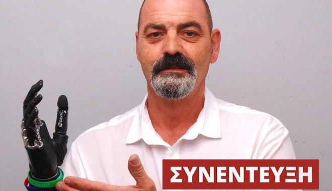 Nigel Ackland: Ο άνθρωπος με το πιο εξελιγμένο βιονικό μέλος στον κόσμο μιλά στο NEWS 247