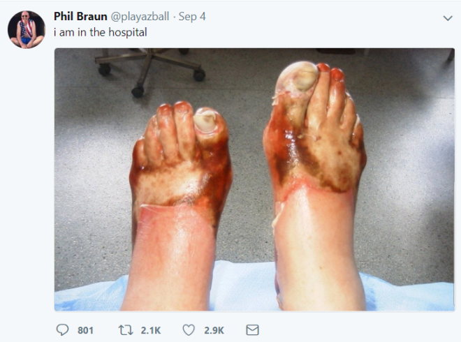 Απίστευτο: Έβαλε φωτιά στα παπούτσια του ενώ τα φορούσε!