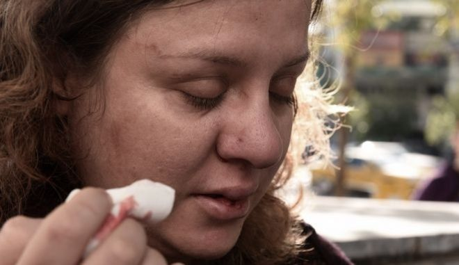 Ευγενία Κουνιάκη: Έτσι με ξυλοκόπησαν οι χρυσαυγίτες