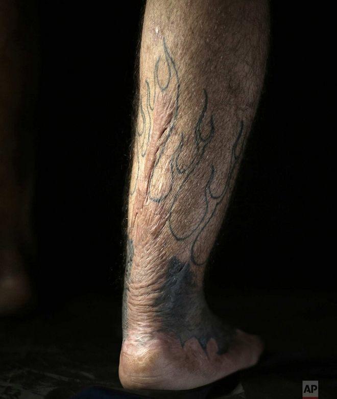 Τα τατουάζ στο λαβωμένο σώμα του Σαάντ Χουντεΐρ