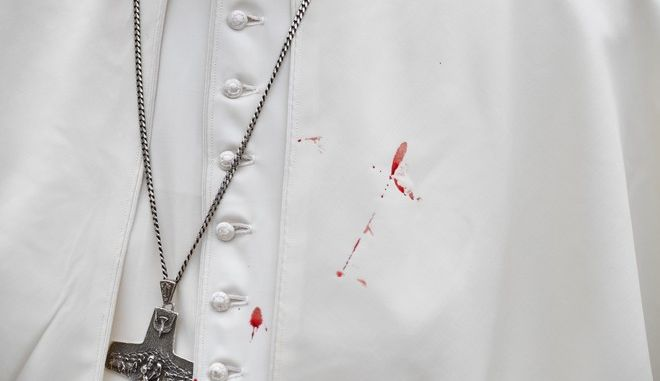"""A drops of blood stain Pope Francis' white cassock after he knocked his head on the popemobile in Cartagena, Colombia, Sunday, Sept. 10, 2017. Vatican spokesman Greg Burke said that """"The pope is fine"""" but has """"a bruise on his cheekbone and eyebrow."""" (Alberto Pizzoli/Pool via AP)"""