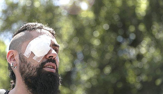 Διαδηλωτής στη Χιλή, τραυματίας στο μάτι