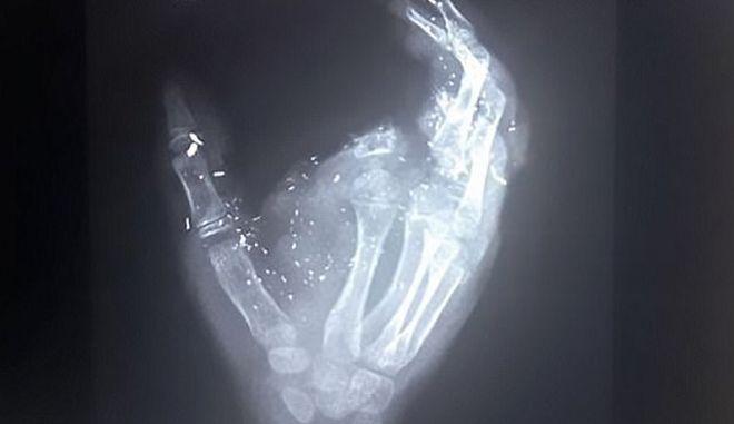 Παιδί 12 ετών έχασε ένα δάχτυλο και την όρασή του από έκρηξη κινητού