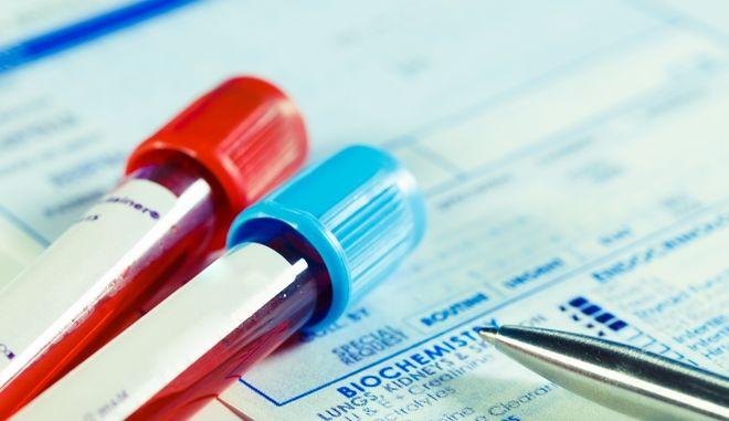 Ένα απλό τεστ αίματος ανιχνεύει έγκαιρα την τοξική πρωτεΐνη του Αλτσχάιμερ