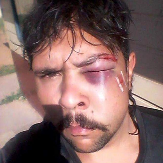 Εκδίκηση: Καγκουρό πλάκωσε στο ξύλο κυνηγό