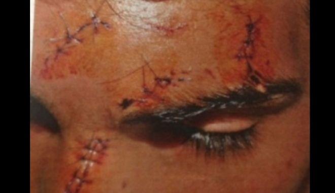 Ο 14χρονος Αφγανός κατήγγειλε τη ρατσιστική επίθεση εις βάρος του και παραλίγο να συλληφθεί