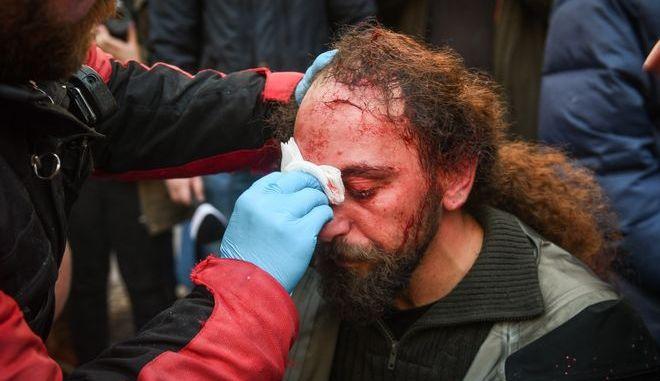 Ο τραυματίας φωτορεπόρτερ Κώστας Νταντάμης από το συλλαλητήριο ενάντια στη συμφωνία των Πρεσπών