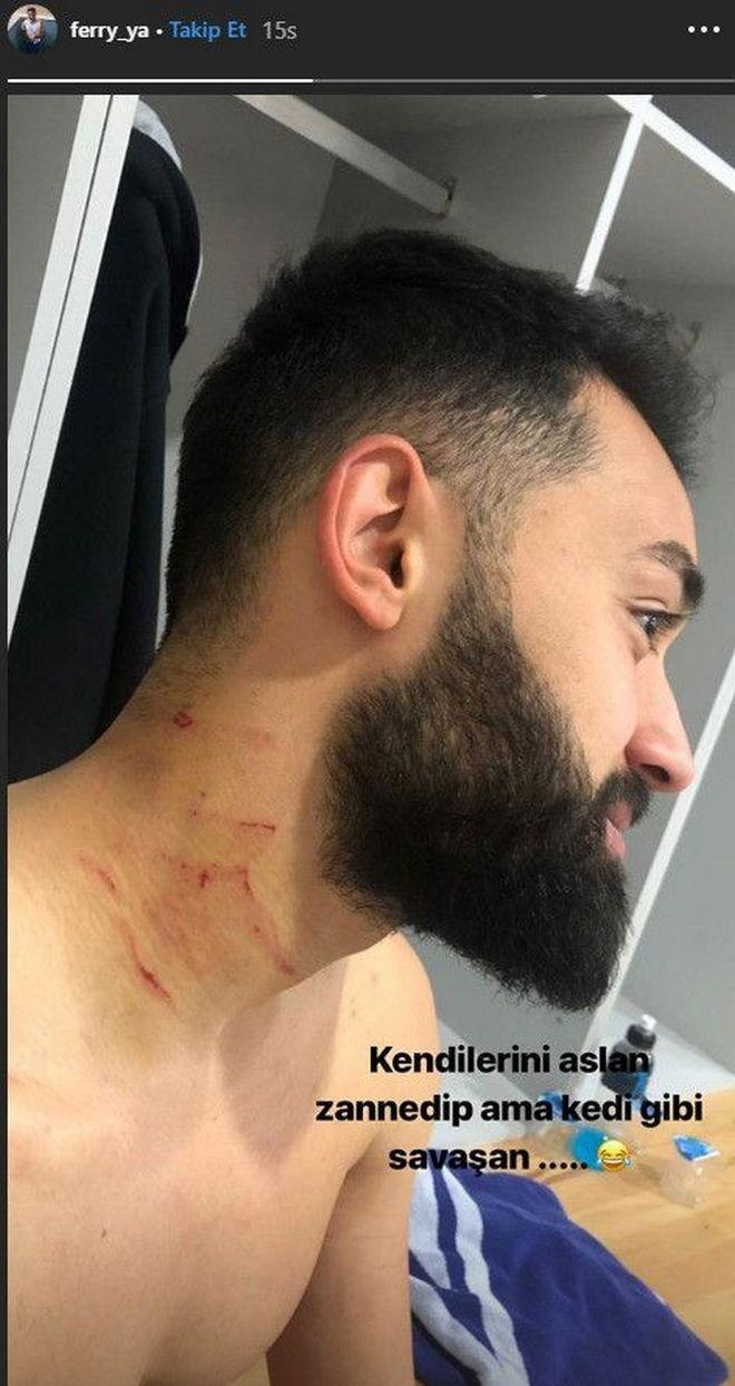 Απίστευτο περιστατικό: Ποδοσφαιριστής χαρακώνει παίκτη με ξυραφάκι