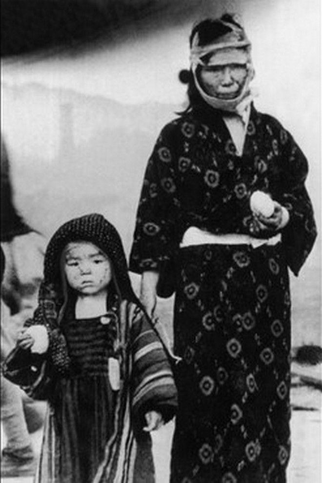 Χιροσίμα: 20 συγκλονιστικές φωτογραφίες για τη ρίψη της πρώτης ατομικής βόμβας