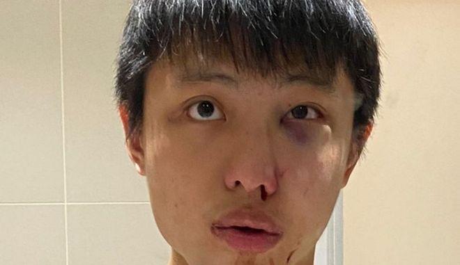 Ο φοιτητής που δέχθηκε την επίθεση.