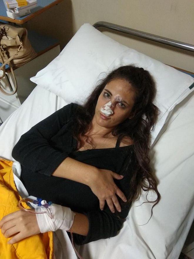 Στο νοσοκομείο με μώλωπες στο πρόσωπο μετήχθη γνωστό μοντέλο