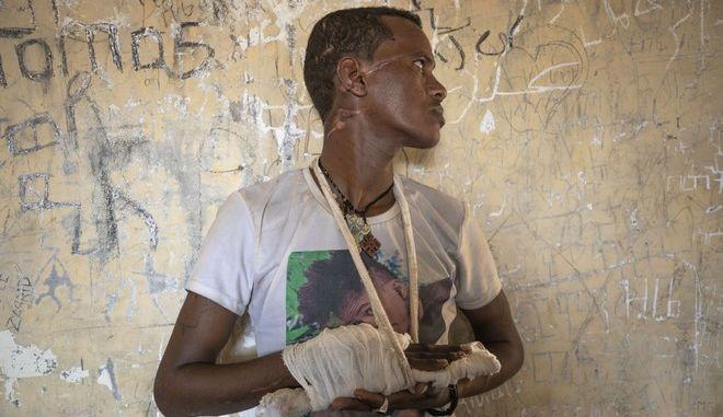 Άνθρωπος που επιβίωσε των σφαγών στην Τιγκράι