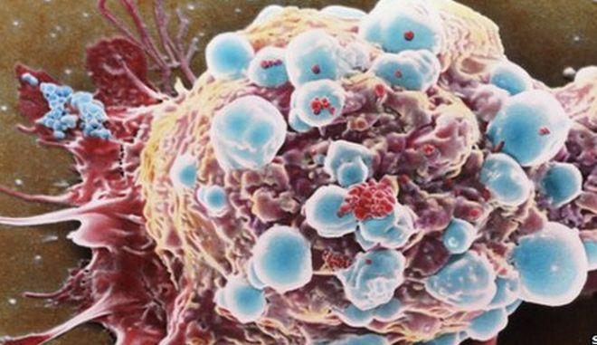 Ελπιδοφόρα έρευνα στις ΗΠΑ: Ενισχυμένα νανοσωματίδια κατά του καρκίνου