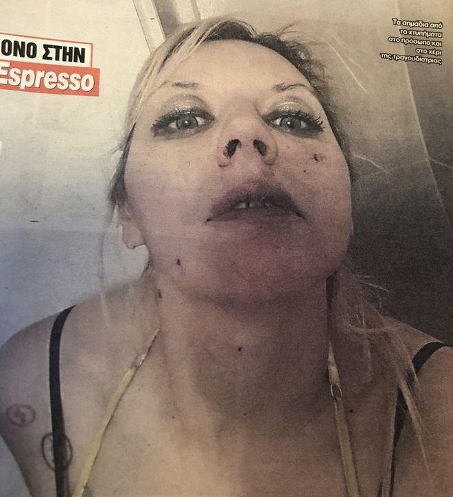 Η Πωλίνα Απέργη χτυπημένη