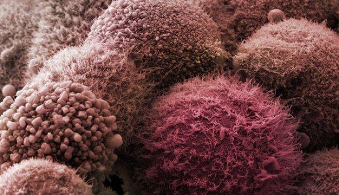 Καρκίνος στο πάγκρεας: Έγκαιρη διάγνωση με τεστ ούρων
