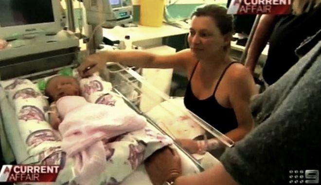 Αυστραλία: Γεννήθηκαν με ένα σώμα και δύο εγκεφάλους