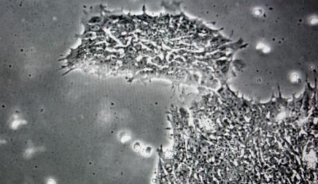 Ανακαλύφθηκε ο ιός που μας κάνει χαζούς