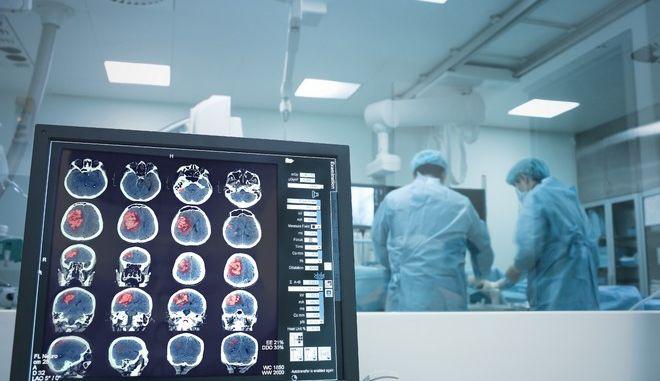 Επέμβαση στον εγκέφαλο