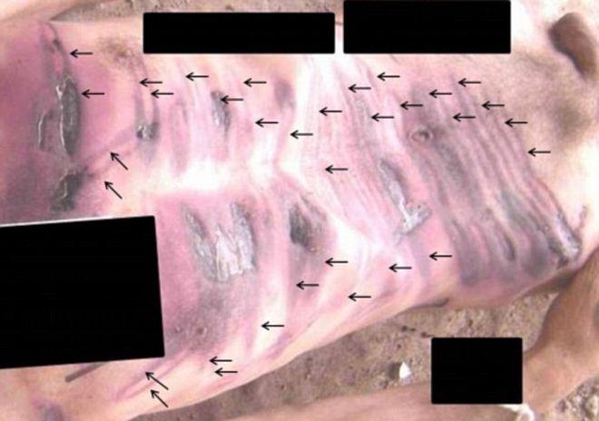 Ηλεκτροσόκ, στραγγαλισμοί, βασανιστήρια: 55.000 φωτογραφίες ίσως αποδεικνύουν τα εγκλήματα του Άσαντ