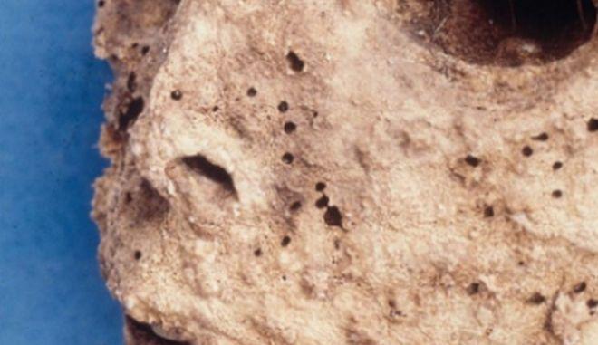 Αρχαίο στέλεχος ηπατίτιδας Β σε μεσαιωνική μούμια παιδιού