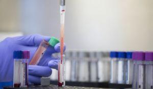 Εξετάσεις αίματος