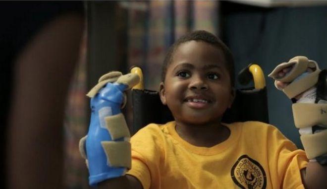 Συγκινητικές εικόνες: Πραγματοποιήθηκε η πρώτη στον κόσμο μεταμόσχευση και των δύο χεριών σε παιδί