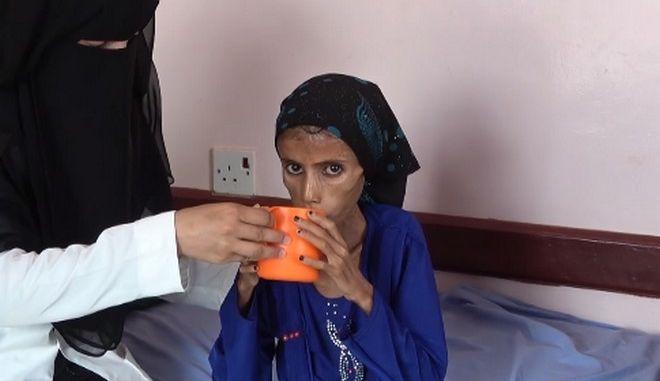 """Υεμένη: Το αμείλικτο πρόσωπο ενός """"άγνωστου"""" πολέμου - 12χρονη ζυγίζει 10 κιλά"""