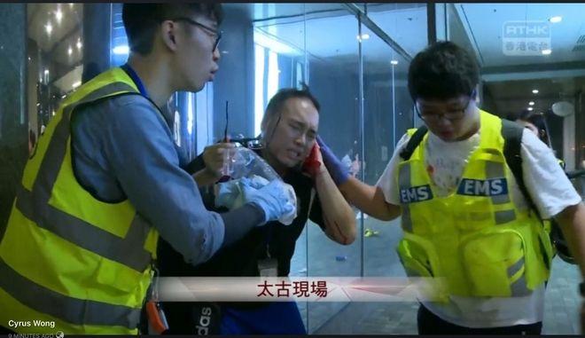 Χονγκ Κονγκ: Επίθεση με μαχαίρι σε εμπορικό κέντρο - Ο δράστης έκοψε αυτί περαστικού