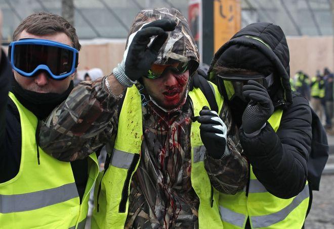 Διαδηλωτής με κίτρινο γιλέκο αιμόφυρτος στο Παρίσι