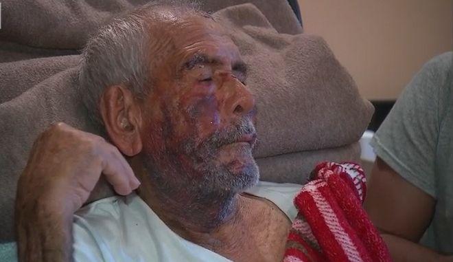 """ΗΠΑ: """"Γύρνα πίσω στη χώρα σου"""" - Βίαιη επίθεση σε 91χρονο Μεξικανό"""