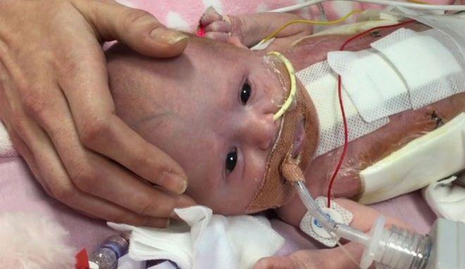 Γνωρίστε τη Βανέλοπι: Η μικρή ηρωίδα που γεννήθηκε με την καρδιά έξω από το σώμα και επέζησε