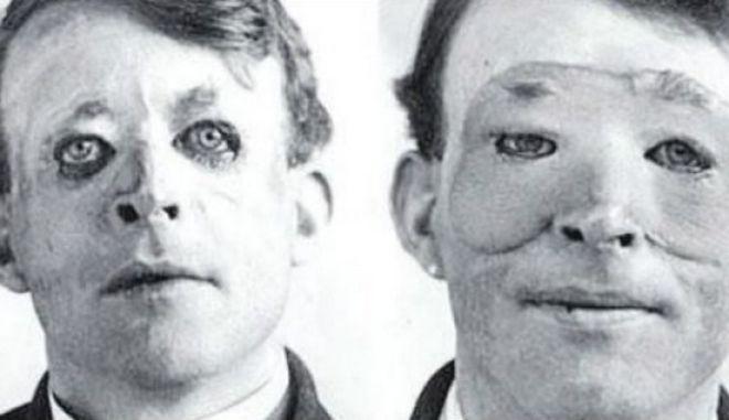 Δείτε πώς έγινε η πρώτη πλαστική επέμβαση προσώπου στον κόσμο το 1917
