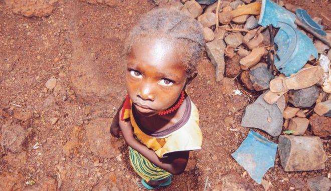 Ένα παιδί στην Αφρική που υποφέρει από υποσιτισμό