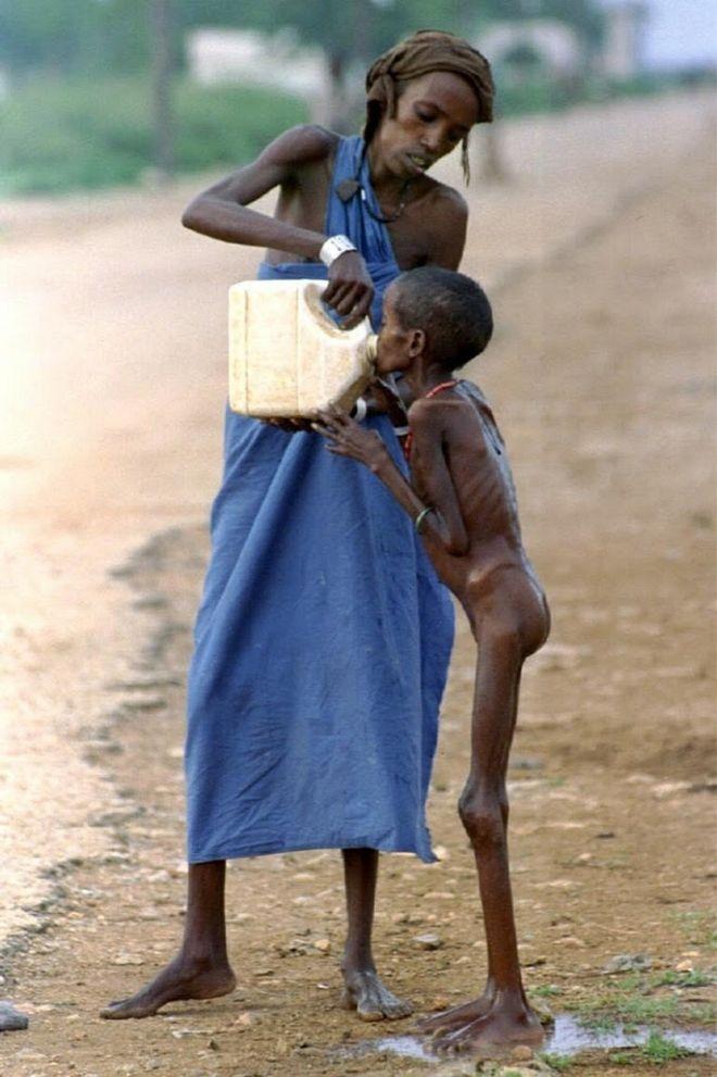 Πεινασμένο παιδί στη Σομαλία πίνει νερό σε καταυλισμό προσφύγων