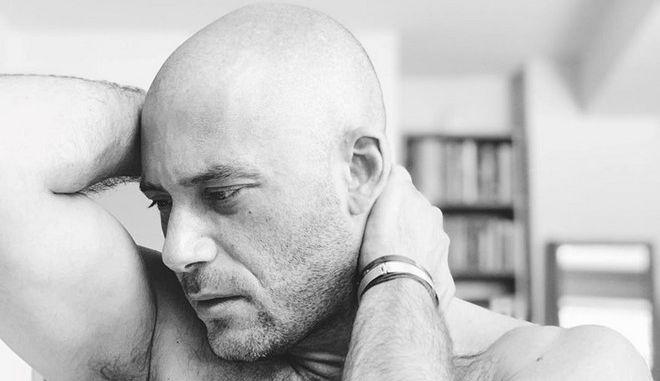 Αντίνοος Αλμπάνης: Το ξυρισμένο του κεφάλι και η αποκάλυψη για το πρόβλημα υγείας