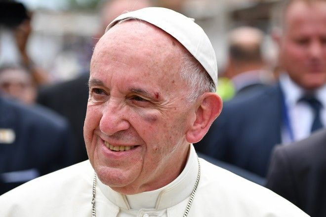 Pope Francis smiles with a bruise on his face after he knocked his head on the popemobile, in Cartagena, Colombia, Sunday, Sept. 10, 2017. Vatican spokesman Greg Burke said that