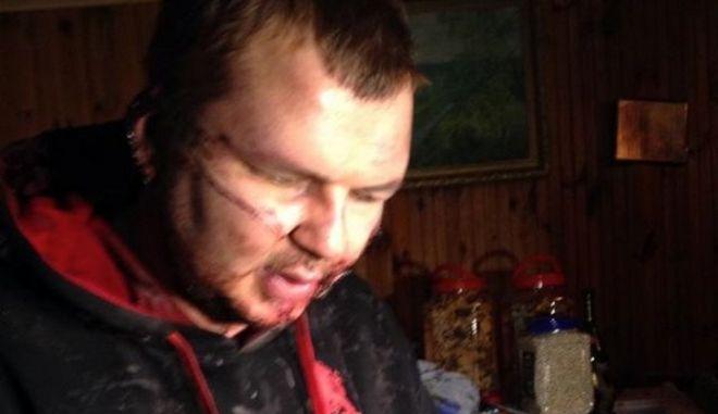 Ιστορία φρίκης: 35χρονος Ουκρανός διαδηλωτής κατήγγειλε ότι απήχθη, σταυρώθηκε και του έκοψαν το αυτί