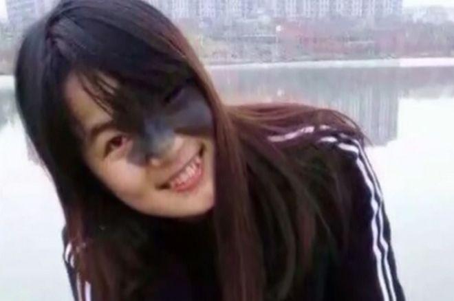Αυτό το κορίτσι ζει με τέσσερα μπαλόνια στο πρόσωπο
