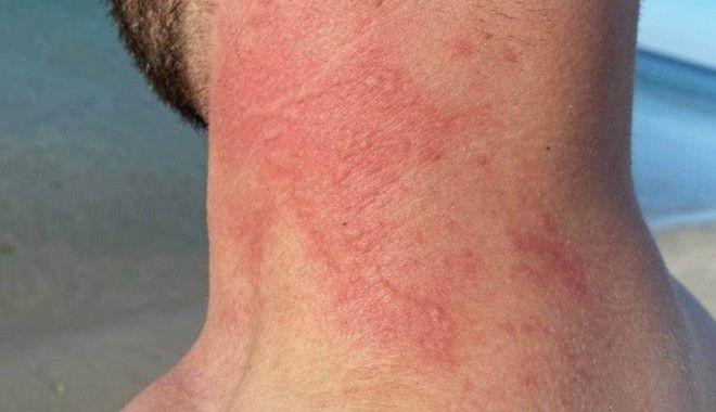 Αυστραλία: Τουρίστας δέχτηκε επίθεση από χταπόδι και έγινε viral