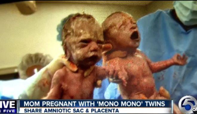 Βίντεο: Τα δίδυμα που γεννήθηκαν πιασμένα χέρι-χέρι