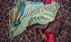 Ένας μικρός ασθενής με υποσιτισμό ανακτά σιγά σιγά τις δυνάμεις του