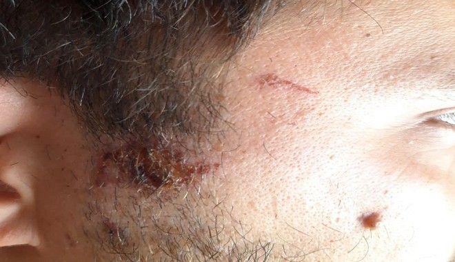 Καταγγελία: «Έβγαλε το γκλοπ και με χτύπησε στο κεφάλι επειδή περνούσα δίπλα του»