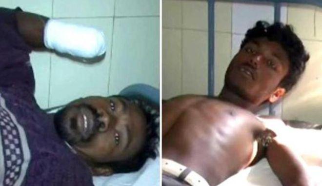 Ινδία: Διακινητές ανθρώπων έκοψαν τα χέρια δυο εργατών διότι δεν τους υπάκουαν