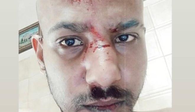 Ναύπακτος: Ομοφοβική επίθεση- Τον ξυλοκόπησαν και τον εγκατέλειψαν αιμόφυρτο