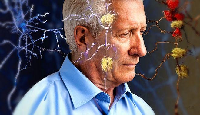 Υπό δοκιμή νέο φάρμακο για το Αλτσχάιμερ