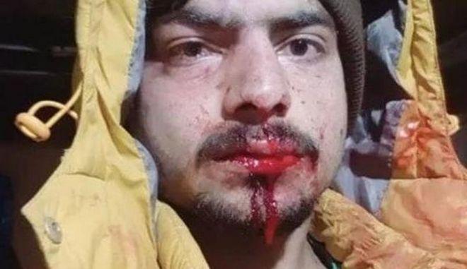 Λάρισα: Εισαγγελική παρέμβαση μετά την καταγγελία για ξυλοδαρμό μεταναστών
