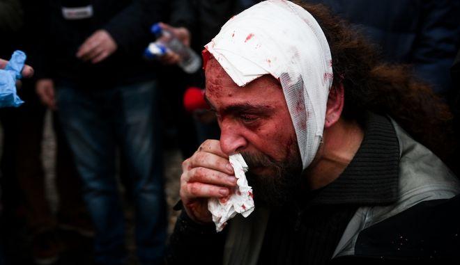Ο τραυματίας φωτορεπόρτερ Κώστας Νταντάμης απο το συλλαλητήριο ενάντια στη συμφωνία των Πρεσπών στο Σύνταγμα.