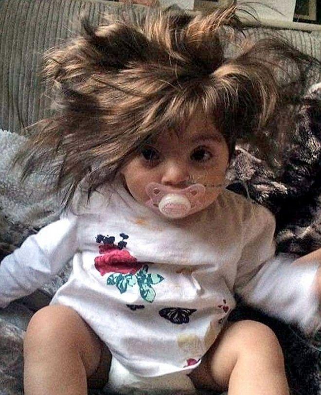 Οκτώ μηνών κοριτσάκι με πλούσια χαίτη 5χρονου!