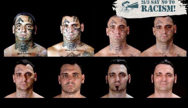 Σβήνοντας το πρόσωπο του μίσους. Ο πρώην νεοναζί που αφαίρεσε τα ρατσιστικά τατουάζ του
